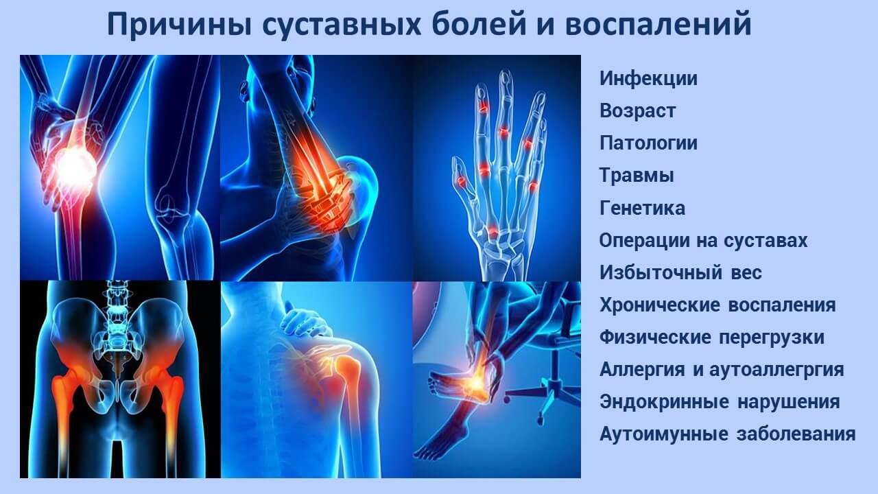 Причины суставных болей