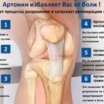 Артонин для суставов при болезнях и травмах от производителя